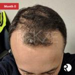 24 Serum Tratament Regenerant & Anticăderea Părului